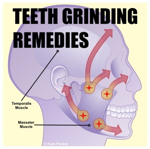 Stop Grinding Your Teeth!