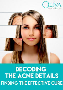 Decoding the Acne Details & Finding the Effective Cure