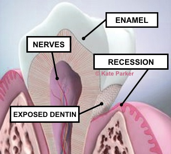 When the protective layers of the teeth are damaged, the nerve endings are exposed