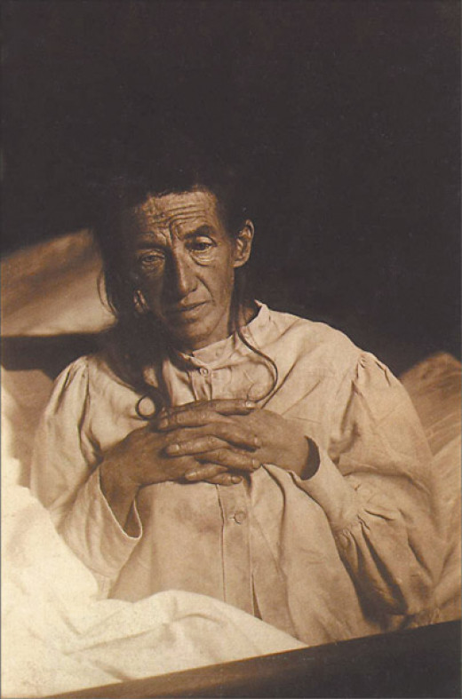 Auguste Deter diagnosed in 1901.  Anonymous.  In public domain, published before July 1, 1909.