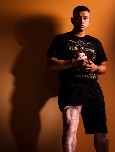 Corporal Isais Hernandez shows off his healing thigh muscles
