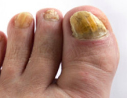 How to Get Rid of a Fungal Nail Infection using Tea Tree Oil