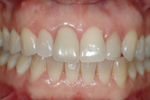 Gums - check your gums for sores, lesions, ulcers, and areas of spontaneous bleeding
