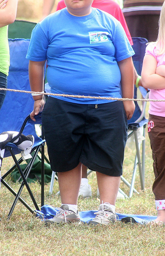 Obesity may be more acceptable in the younger generation, unfortunately it is very bad for your health.