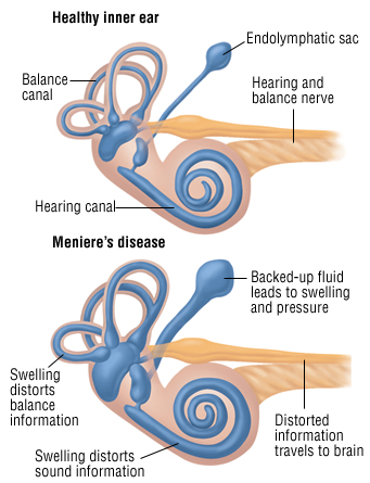 Meniere's disease is a disorder of the inner ear that causes spontaneous episodes of vertigo