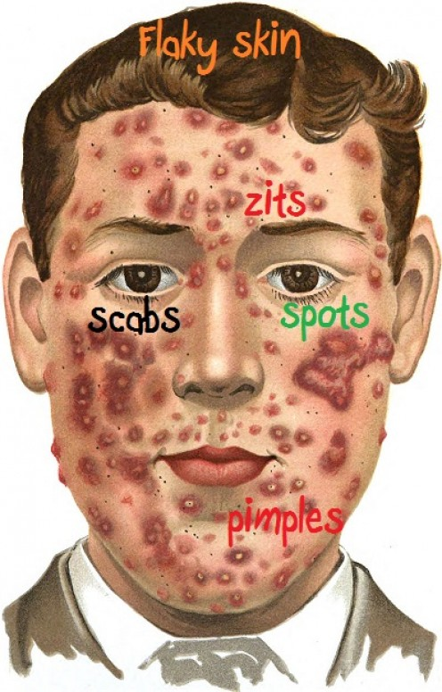 Top Ten Interesting and Fun Facts About Flaky Skin, Spots, Zits, Scabs, and Pimples
