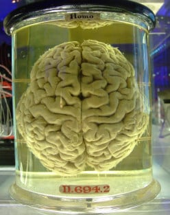 Mysteries: The Asylum That Collected Brains in Jars