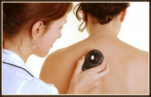 Caught early, there's close to a 100 percent cure rate for skin cancer.