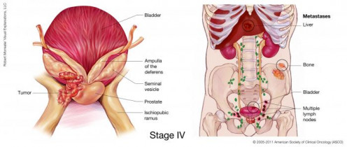 Prostate cancer Stage IV:Cancer spreads to more distant structures, such as the bladder.