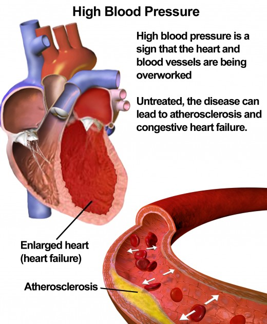 Illustration of High Blood Pressure