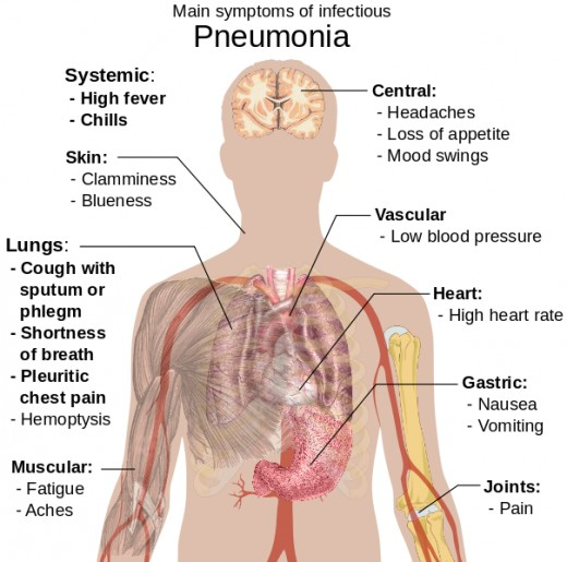 Main Symptoms of Pneumonia