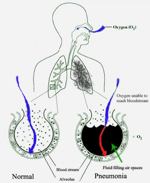 Pneumonia fills the lung's alveoli with fluid, hindering oxygenation. The alveolus on the left is normal, whereas the one on the right is full of fluid from pneumonia.
