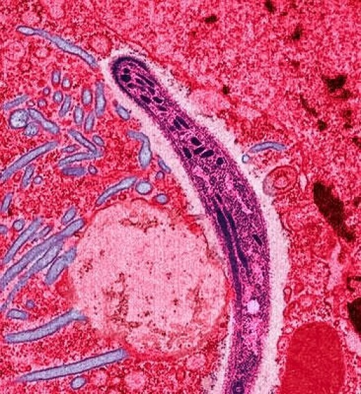 A sporozoite of the malarial parasite moving through the lining of a mosquito's gut; false colour has been added to the photo