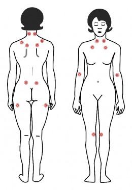 Fibromyalgia Pain Points