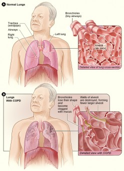 Similarities Between COPD and Bronchiectasis