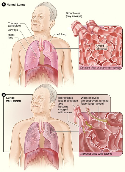 Normal Lungs vs Lungs with COPD