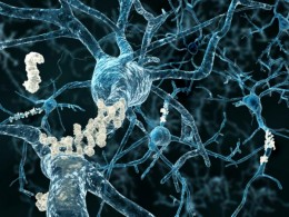 Beta-Amyloid Plaques in the Brain. If you hover over this picture an i will appear. Click on that for source of picture and article on this from Medical News Today.