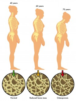 Osteoporosis: What is it, and How to Manage It