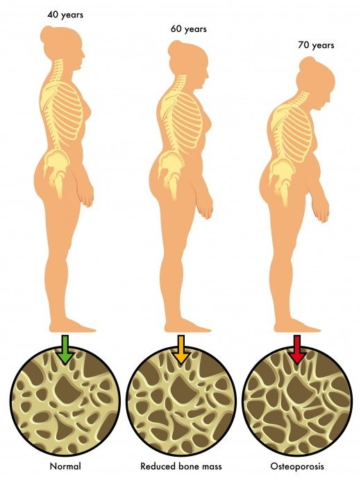 Osteoporosis is a silent disease.