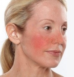 Natural Rosacea Treatments