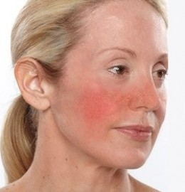 how to help rosacea naturally