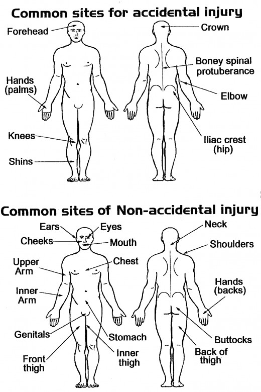 Accidental injuries vs. non-accidental injuries