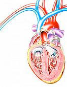 Cut-away of a heart with (CHF).