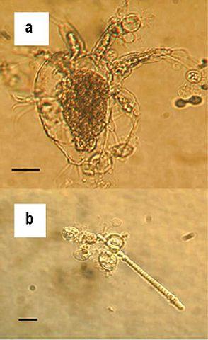 Batrachochytrium dendrobatidis under a microscope.