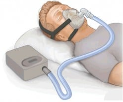 To those who have sleep apnea, have you tried the new small, lightweight oral devices yet?