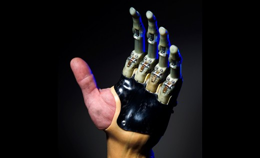 Sophisticated prosthetic fingers called ProDigits can mimic the complex movements of individual fingers