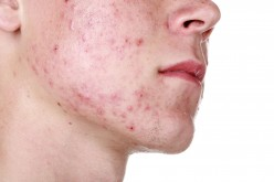 Acne- Causes, Symptom and Treatment.