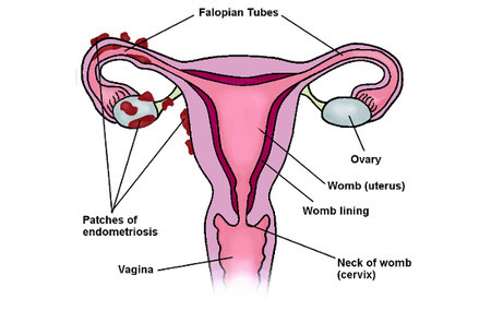 This is a drawing of what a uterus affected by endometriosis might look like