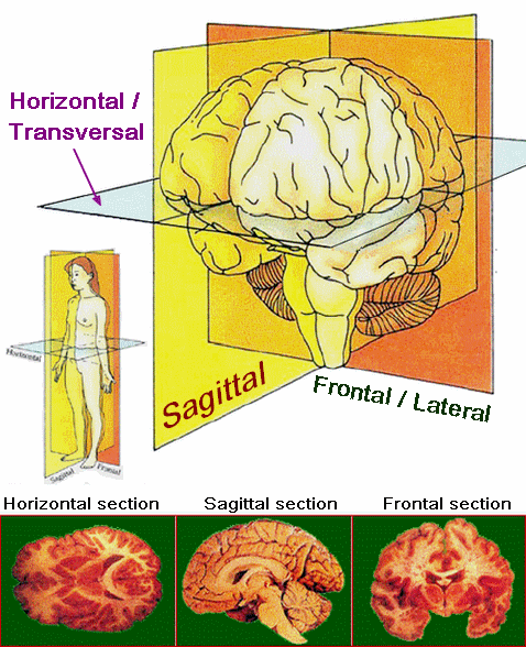 The human brain - sections