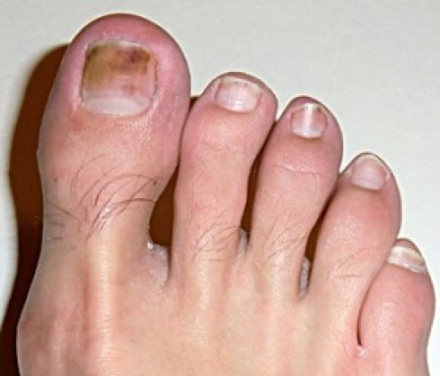 Discolored toe nails due to fungus