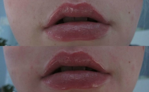 A comparison of my lips immediately after applying  the gloss (above) and after wearing the plumper for 10 minutes (below),