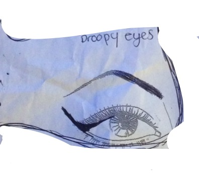 Droopy Eyes