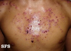 What Causes Pimples on the Chest?