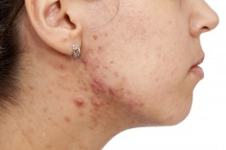 When Should You Consider Taking Accutane?