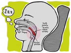 Signs of sleep apnea: are you aware?