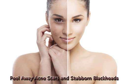 Get rid of acne scars and blackheads using chemical peels.