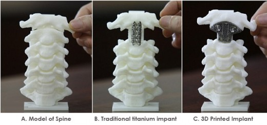 3D Printing of Medical Implants