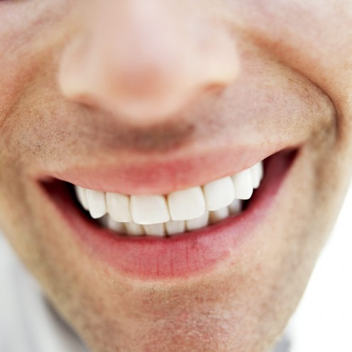 Teeth whitening strips improve your appearance