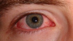 Eyes Dryness: Symptoms and Treatment