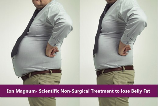 Ion Magnum - Scientific Non-Surgical Treatment to lose belly fat