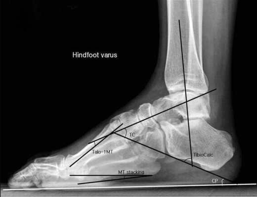Hindfoot Varus