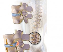 Causes Of Severe Lower Back Pain