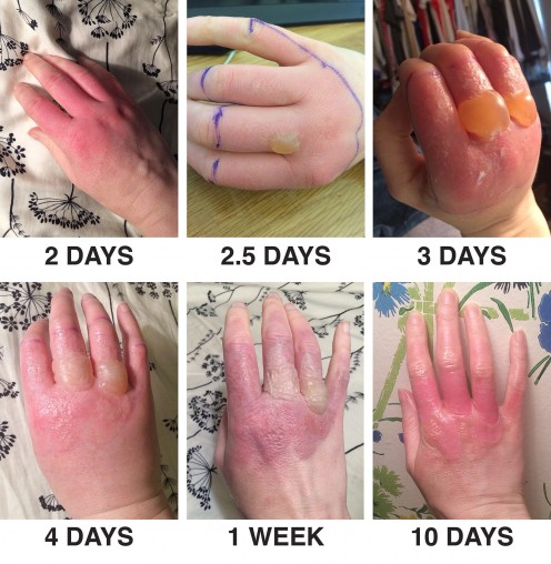 Phytophotodermatitis after exposure to lime juice; the effects of giant hogweed sap are similar