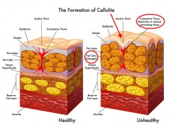 How to Get Rid of Cellulite with Bumroll Exercise