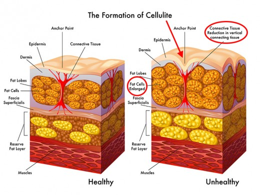 In cellulite formation, the anchor points of connective tissue are pulled by too much fat.