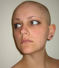 My pictures of cancer hair loss courage